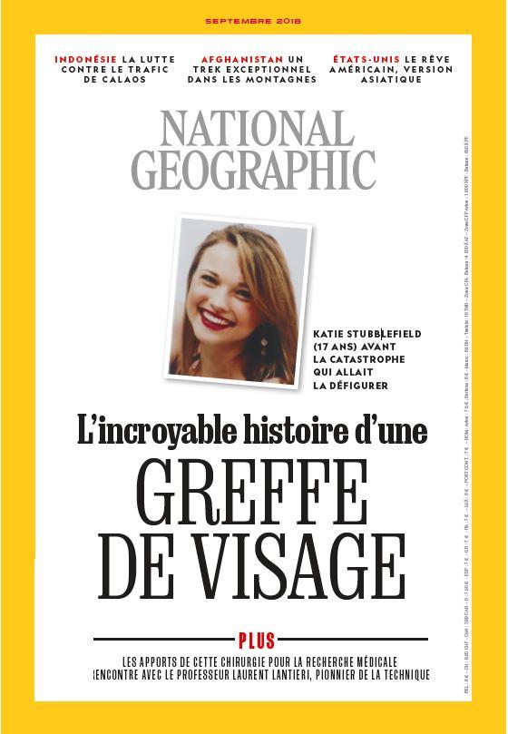 National Geographic documente une greffe totale du visage